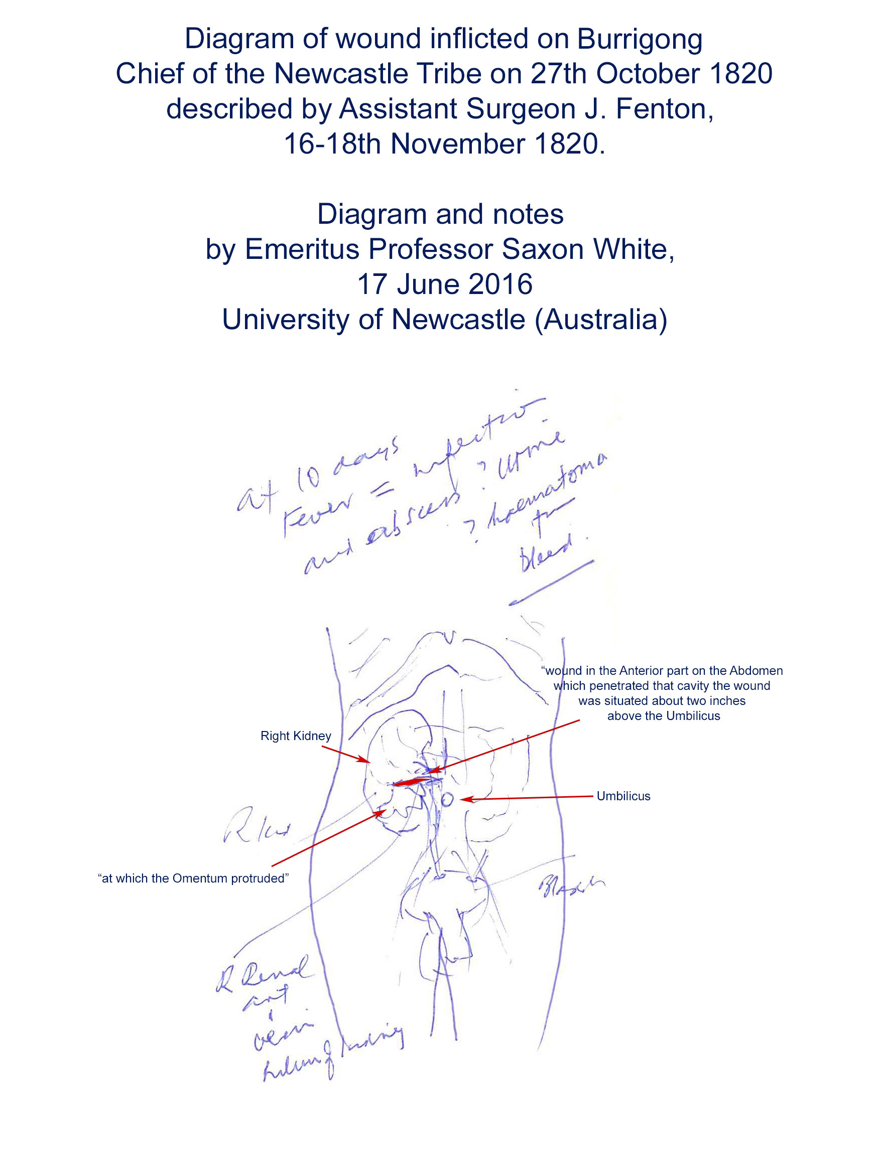Diagram showing wound inflicted on 'Burrigong', by Emeritus Professor Saxon White (17 June 2016)